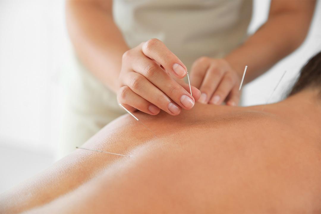 60 minutters akupunkturbehandling, kopping og dryneedling (1 av 1)