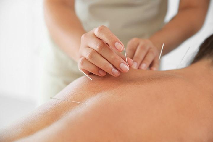 60 minutters akupunkturbehandling, kopping og dryneedling
