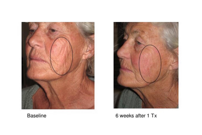 Strama upp huden med Skin Tightening