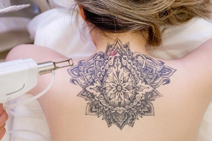 Tatueringsborttagning 1 eller 3 tillfällen