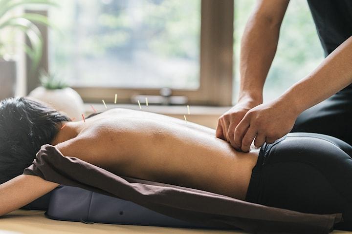60 min akupunkturbehandling hos Klinikk 24, midt på Majorstuen