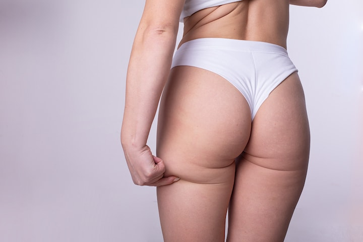 Brazilian buttlift med elektrisk stimulering hos Kroppsforming AS
