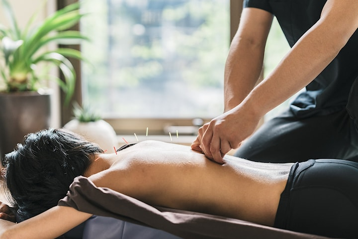 Klassisk kinesisk akupunktur hos 5 Elements Clinic