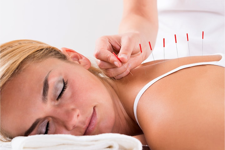 Akupunktur- og massasjebehandling hos Cheng Wang
