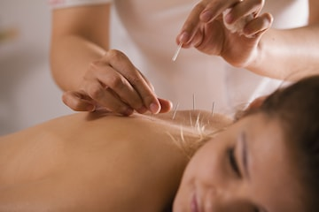 Valfri Akupunkturbehandling