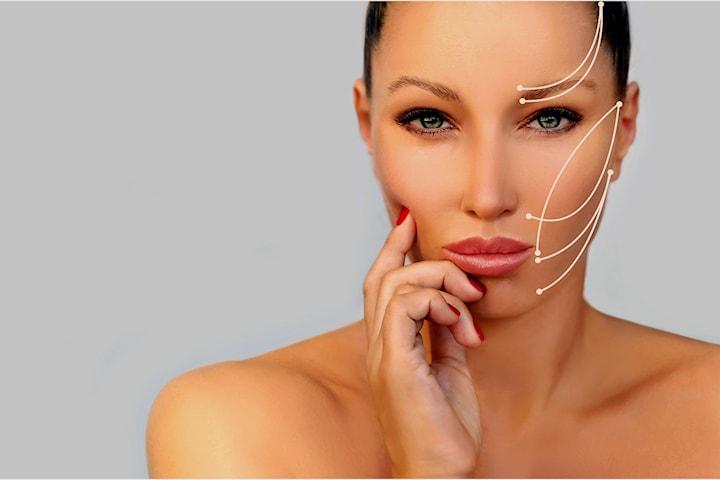 Trådløft - ansiktsløft uten kirurgi og arr hos Kosmetisk Lege