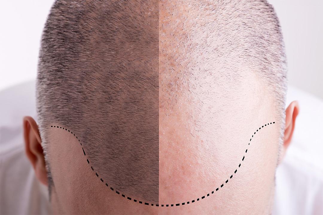 PRP-behandling mot hårtap hos nyåpnede Beauty Senter (1 av 1)
