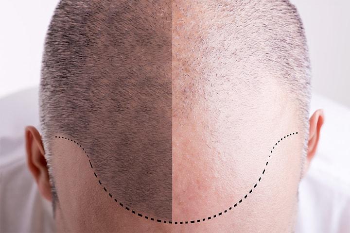 PRP-behandling mot hårtap hos nyåpnede Beauty Senter