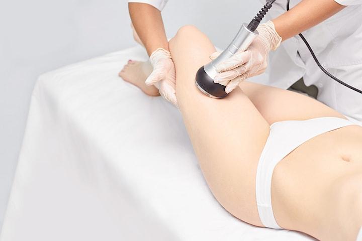 3D HIFU huduppstramning och fettreducering