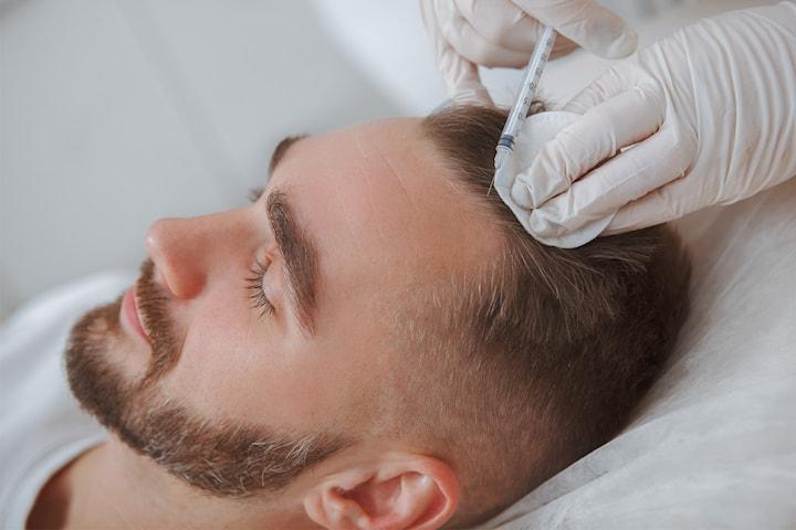 PRP-behandling mot håravfall eller för naturligt glow i ansiktet