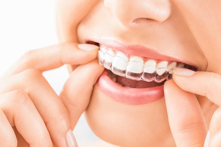 Tandreglering med Invisalign