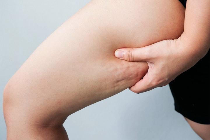 Cellulit- och fettreducering hos BK Beauty & Relax Center