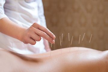 Akupunktur + konsultasjon hos Kina-Akupunktur Klinikk i Bergen