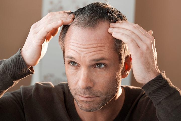 PRP-behandling av hårtap