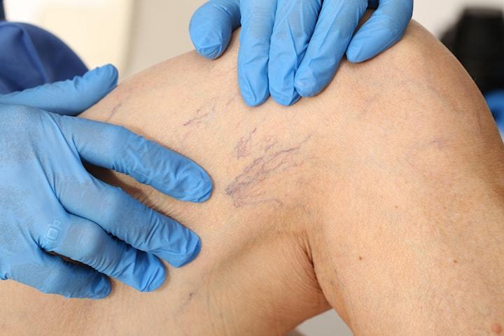 Ta bort ytliga blodkärl/ådernät på benen hos leg. läkare