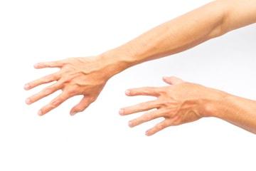 Minskning av handvener hos leg. läkare