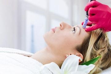 Microneedling med DermaPen och serum