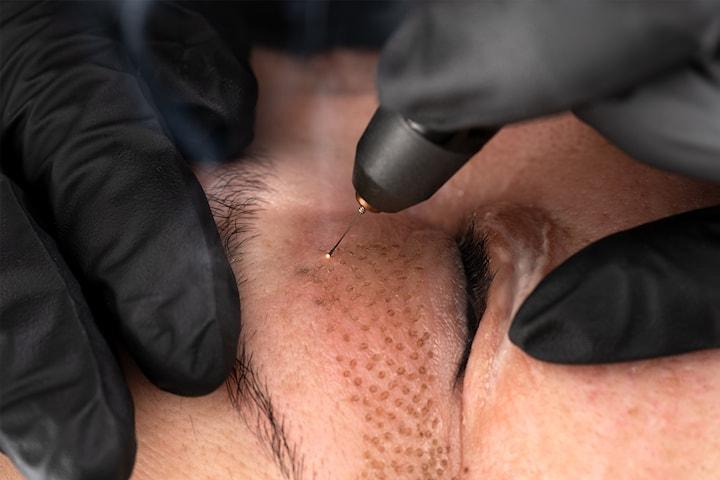 Behandla slapp hud med plasma pen PLAXEL+