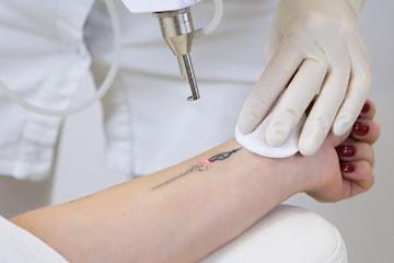 Tatueringsborttagning hos laserterapeut