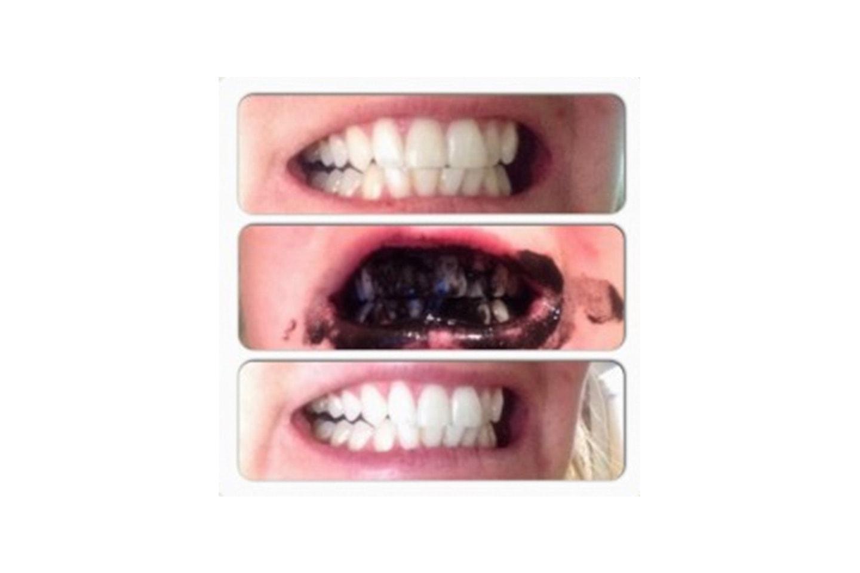 Få hvite tenner med kullpudder!