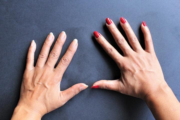 Handföryngring med minskning av handvener hos leg. läkare