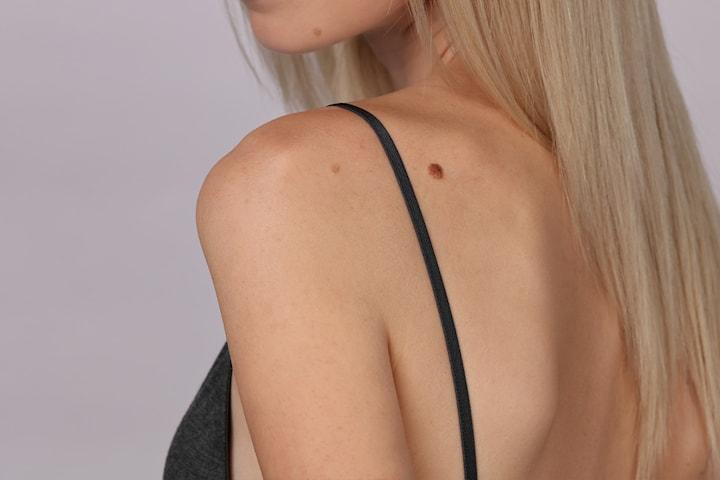Fjern skintags (hudflik), utvekster og aldersflekker med plasmapen hos Lørenskog Medispa