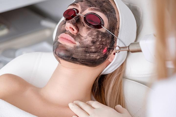 Ansiktsbehandling, carbon peeling med laser sentralt hos Beauty Center