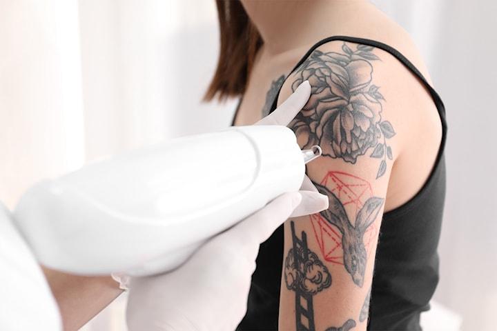 Tatoveringsfjerning hos eksklusive Le Skin