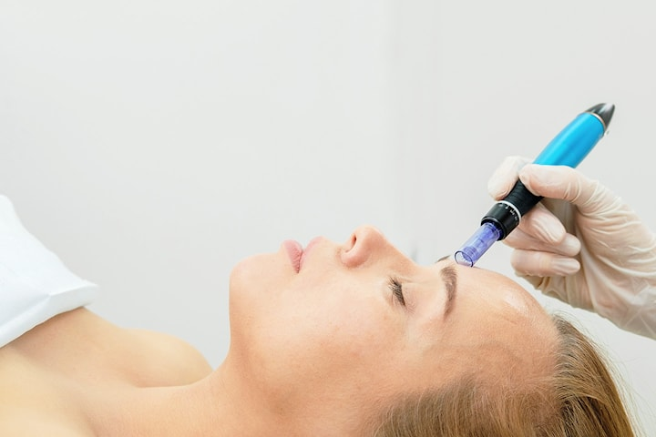 Microneedling på Salong Filling Beauty