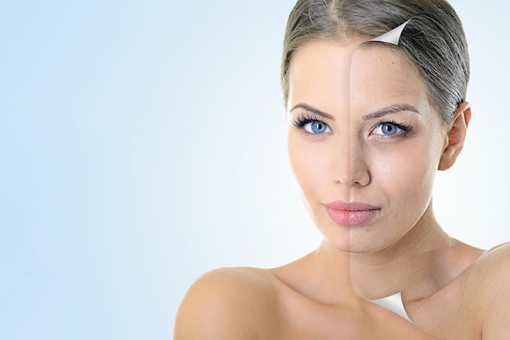 Behandla rynkor och lyft slapp hud med microneedling