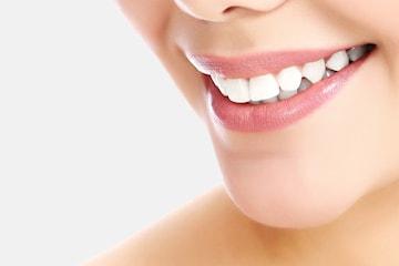 Tandblekning på DermaDent Kliniken