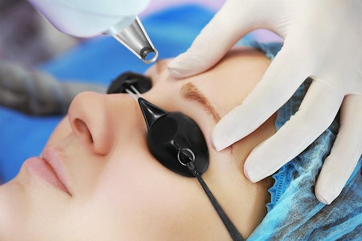Tatueringsborttagning med laser för ögonbryn