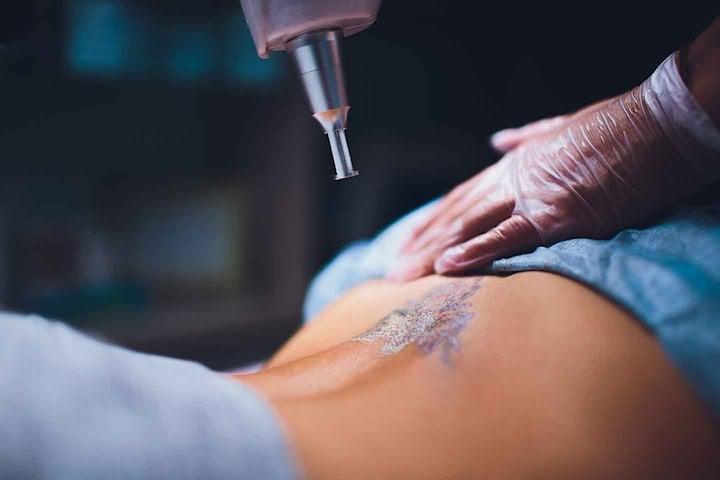 Ta bort dina oönskade tatueringar med Q-terra Q10 Laser hos EliteSkin