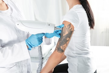 Tatueringsborttagning med YAG-laser
