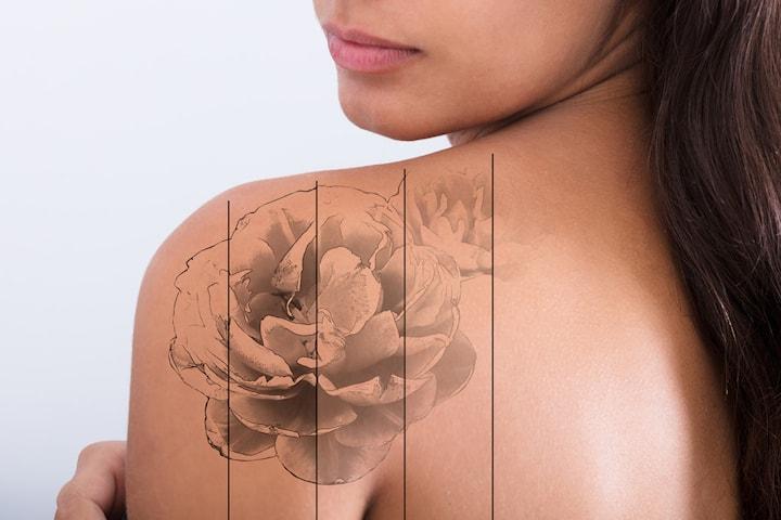 Tatueringsborttagning hos Im Cliniq Esthetic