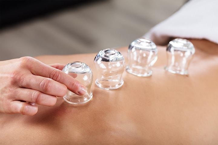 Bli kvitt cellulitter, nupper og urenheter med kopping-terapi hos Skillebekk Klinikken
