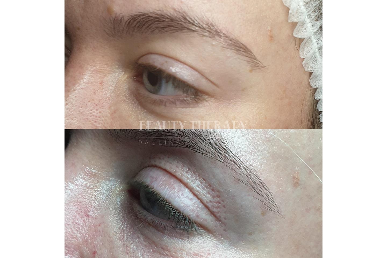 Plasmapenbehandling hos Beauty Therapy