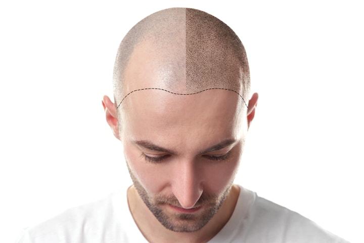 Scalp micropigmentation på Made Hair Clinic