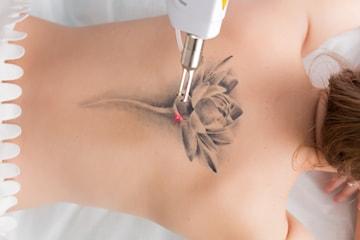 Laserborttagning av tatuering