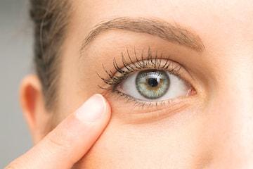 Behandling av mörka ringar under ögonen