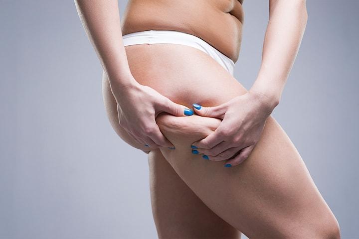 Fettreducering med lipomassage