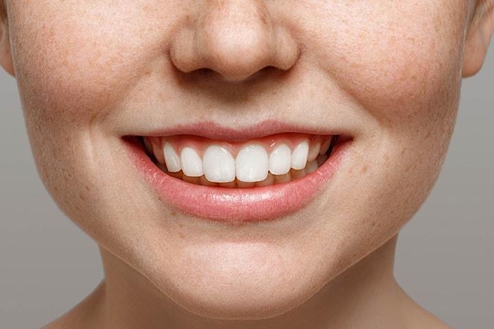 Fullständigt tandblekningspaket inkl. SuperSeal hos Tandea