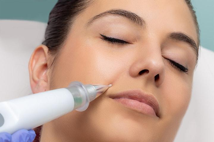 Plasma Pen för huduppstramning och hudföryngring