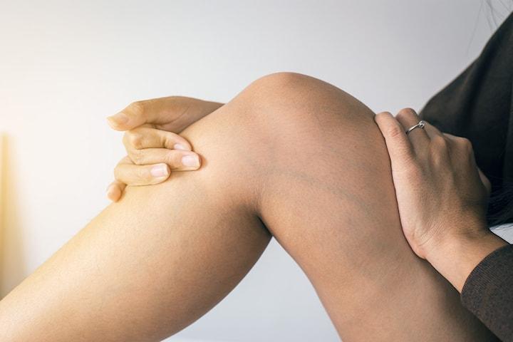 Behandling av ytliga blodkärl/spindelvener hos leg. läkare
