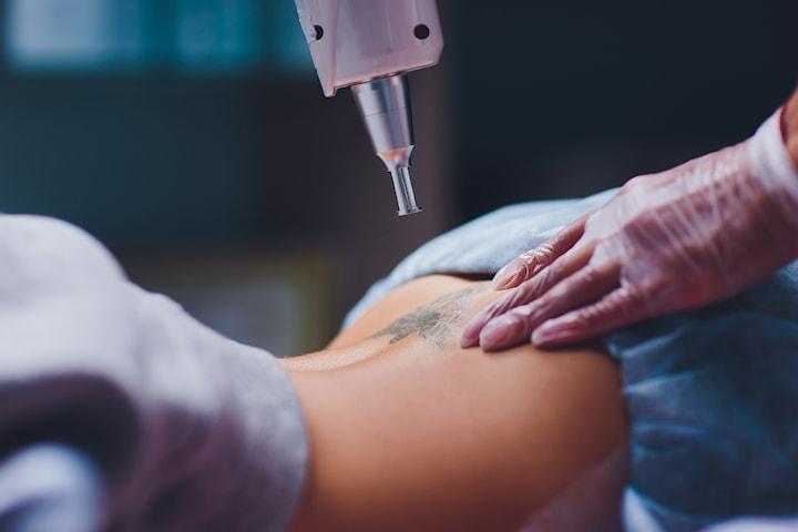 Fjern tatoveringen med Pico Teknologi-laser hos Beauty Center