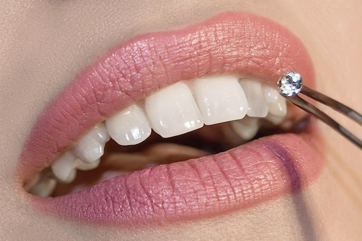 Kosmetisk tandblekning hos Glam Care Clinic
