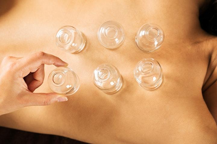 Koppning och massage (hijamaterapi)