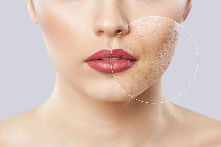 Ansiktsbehandling mot akne