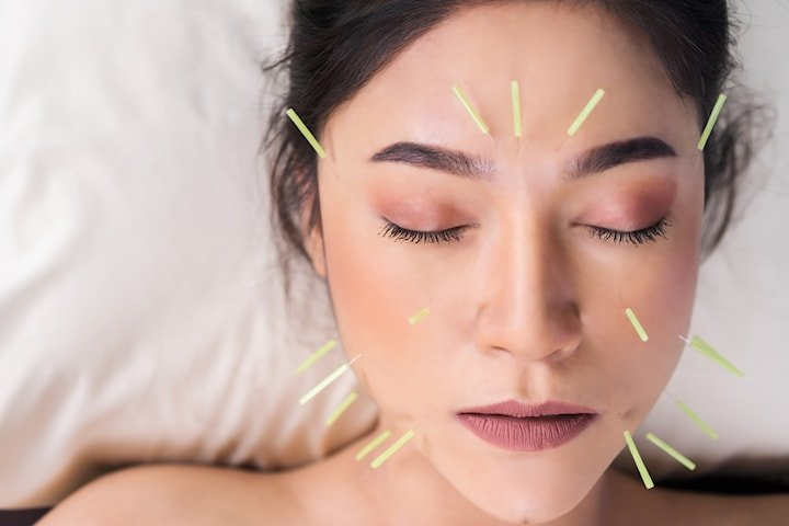Kurs i estetisk akupunktur