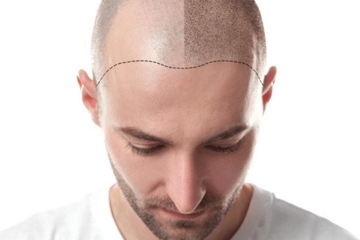 SMP mot håravfall 3 behandlingar